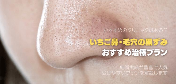 いちご鼻治療でおすすめの美容皮膚科について
