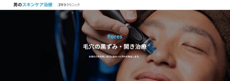 ゴリラクリニックの毛穴治療について